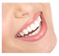 Winter offer - tooth whitening £199