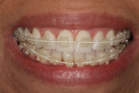 March Offer: 6 Month Smiles