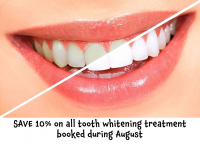 SAVE 10% on all tooth whitening treatment booked during August at Epsom Dental Centre
