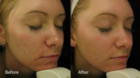 6 Sessions of Dermalux Tri-Wave for £225