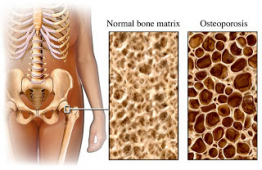 The importance of Vitamin D in preventing Osteoporosis.