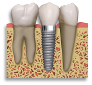 Dental Implants - advice from Wycherley's Dental Practice Newport