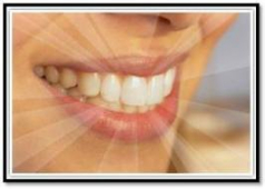 Fantastic New and Exclusive Product To Solarama- EXTRA WHITE LASER TEETH WHITENING