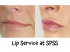 Lip Enhancement at SPSS @SurreyPlasticSS #CosmeticSurgery
