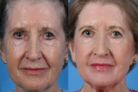 Course of chemical peels just £350