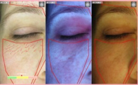 Free Stratum Skin Analysis and Report worth £50 with any treatment or gift voucher purchased in April