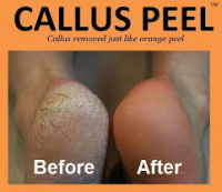 Callus Peel with OPI Polish £20