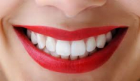 """Special Offer"" Tooth Whitening For Life For ONLY £49 From Cosmetic Medical & Dental Centre"