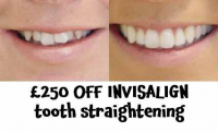 £250 OFF INVISALIGN Teeth Straightening Service at Mulgrave Dental Centre Sutton