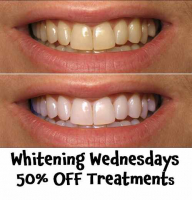 Whitening Wednesdays with 50% OFF at Mulgrave Dental Centre Sutton