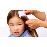 Spotting Head Lice in Heanor and Ripley