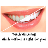 Teeth Whitening – but which method to choose? Tips from Epsom Dental Centre @edcchigamin #loveyoursmile