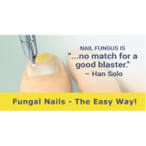 Fungal Nail Treatment with Laser in Telford and Shrewsbury