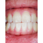 Mouth cancer screening as standard with a check up at All Smiles Dental Practice.