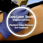 Should Tattoo Parlours Offer Laser Removal?