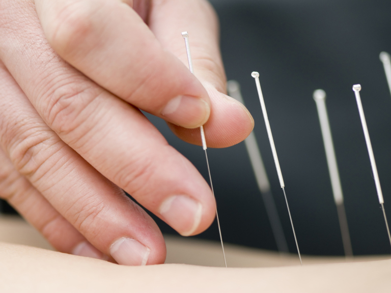 Could acupuncture help you? FREE consultation!