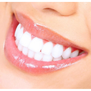 FREE Teeth Whitening Consultations