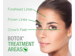 Botox And Filler Treatment - At Offer Prices!