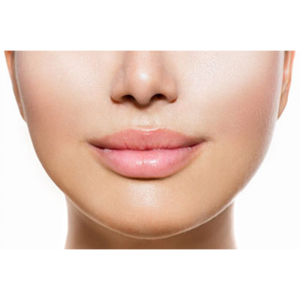 Dermal Filler for Nasolabial lines and marionette lines from £140 at  Bootiful Beauty, Aesthetics and Cosmetics
