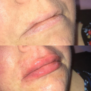 Book yourself and a friend in for a lip filler treatment and get it for £120 each (normal price £140)