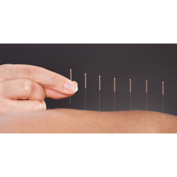£5 OFF YOUR FIRST ACUPUNCTURE TREATMENT